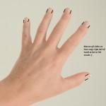 Allergi  nese hånd negl