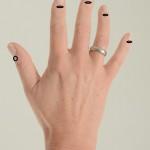 allergi øye hånd